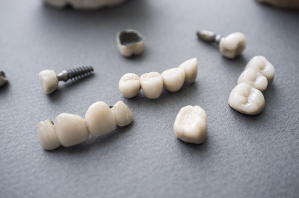 Natural Looking Implant Crowns For Front Teeth