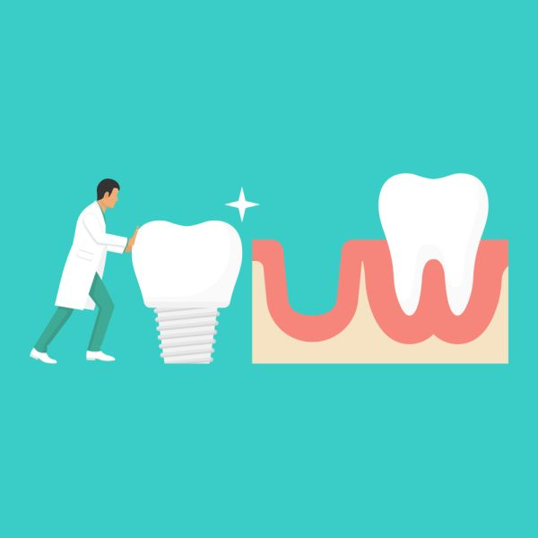 What Options Are Available From An Implant Specialist For Tooth Restoration?