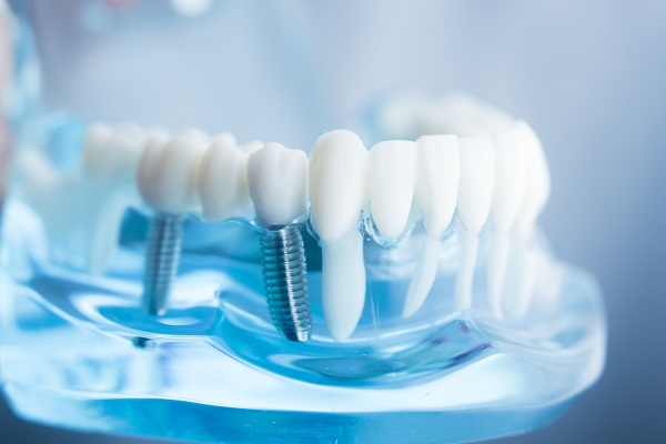 A Guide To Getting Dental Implants