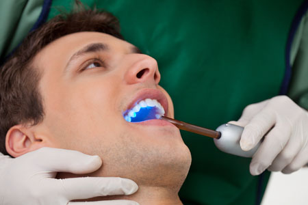 Teeth Whitening Options Guide