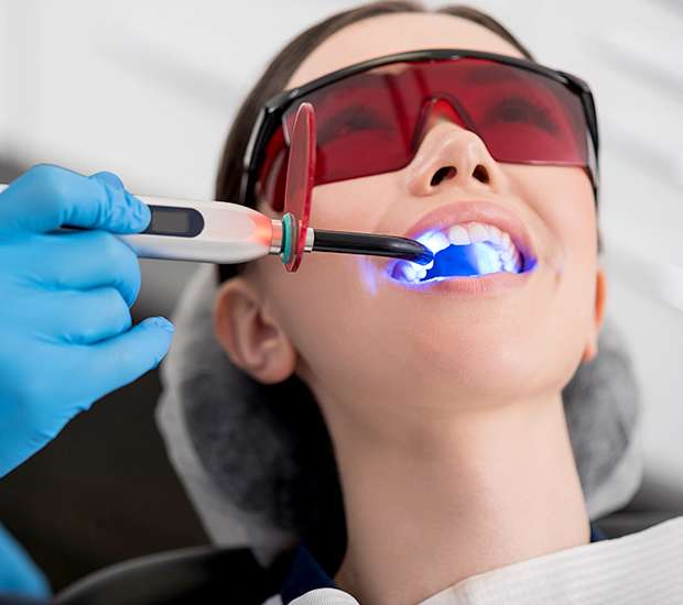 Auburn Professional Teeth Whitening